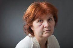 Missbrauchte Frau Stockbild