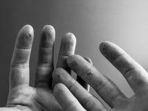 Misshandelte Hände Stockbild