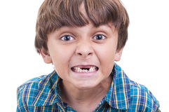 Missing baby teeth. Closeup of cute little boy showing mouth of missing front teeth on white background Stock Image