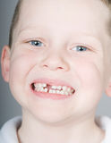 Missing front tooth Royalty Free Stock Photo