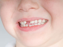 Missing front tooth Royalty Free Stock Image
