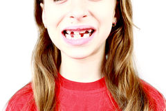 Missing Front Tooth Royalty Free Stock Photography