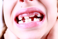 Missing milk tooth Royalty Free Stock Image