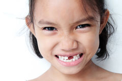 Missing Teeth. Young girl showing a missing teeth Royalty Free Stock Images
