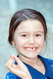 Missing tooth Royalty Free Stock Images