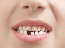Missing tooth Stock Image