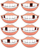 Missing Tooth Series. Eight mouths with different tooth missing from each Royalty Free Stock Photo