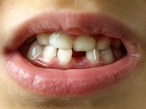 Missing tooth smile kid or children mouth closeup or macro royalty free stock image
