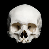Mitad superior del cráneo humano verdadero Foto de archivo libre de regalías
