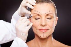 Mitte gealterte Schönheitsoperation Lizenzfreies Stockbild