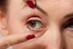 Mittlere Greisin mit Beuteln unter den Augen, die oben Kontaktlinse in ihr braunes Auge, in Abschluss und in Makroansicht einsetz Lizenzfreie Stockfotografie