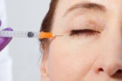 Mittlere Greisin mit Falten nähern sich Auge Gesichtseinspritzungen und -kollagen Makro- und selektiver Fokus Hautanheben Fällige lizenzfreie stockfotos
