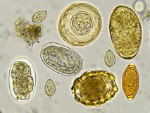 Mixed of helminthes in stool. Analyze by microscope royalty free stock photo