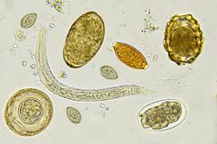 Mixed of helminthes in stool. Analyze by microscope stock photos