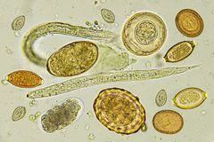 Mixed of helminths or parasitic worm in stool. Analyze by microscope stock photography