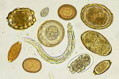 Mixed of helminths in stool. Analyze by microscope royalty free stock photos
