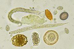 Mixed of helminths in stool. Analyze by microscope stock photo