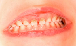 Mjölka tanden royaltyfri bild