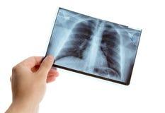 Männliche Hand, die Lungenradiographie hält Stockfotos