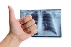 Männliche Hand, die sich Daumen nahe bei Lungenradiographie zeigt Stockbilder