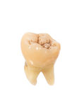 mänsklig tand Arkivfoto
