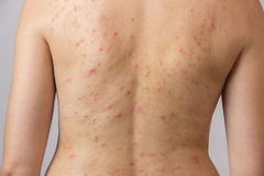 Moça com acne, com os pontos vermelhos e brancos na parte traseira Fotografia de Stock Royalty Free