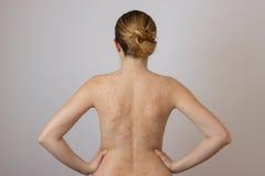 Moça com acne, com os pontos vermelhos na parte traseira Fotos de Stock Royalty Free