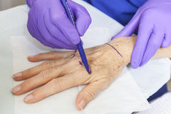 Mão da mulher da marcação do cirurgião plástico para a cirurgia Foto de Stock