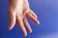 Mão de um homem com contração de Dupuytren no azul Fotografia de Stock