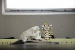 Modèle de crâne en neurochirurgie images libres de droits