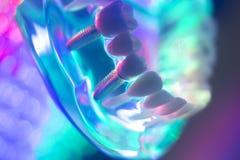Modèle de dents de dentiste Images libres de droits