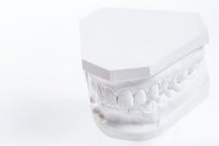 Modèle de gypse de mâchoire humaine sur un fond blanc images stock