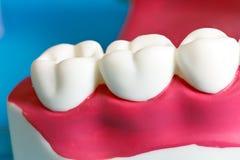 Modèle de mâchoire avec les dents humaines photographie stock