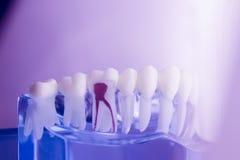 Modèle dentaire d'art dentaire de dents image libre de droits