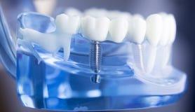 Modèle dentaire d'art dentaire de dents image stock
