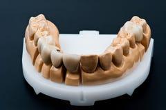 Modèle dentaire d'implant de cire Image libre de droits