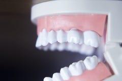 Modèle dentaire de dents Image libre de droits