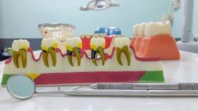 Modèle dentaire de dents et outil dentaire photo libre de droits