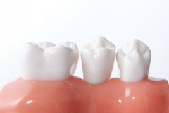 Modèle dentaire générique de dents photographie stock libre de droits