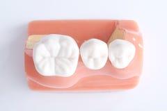 Modèle dentaire générique de dents image stock