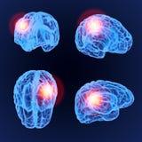 Modèle du rayon X 3D de mal de tête Synapse de neurones de cerveau, corps d'anatomie Ensemble d'illustration médicale de la malad Photo stock