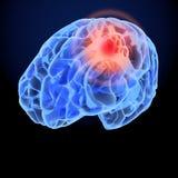 Modèle du rayon X 3D de mal de tête Synapse de neurones de cerveau, corps d'anatomie Illustration médicale de la maladie, douleur Photos stock