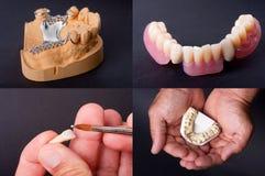 Modèles dentaires de cire Photographie stock libre de droits