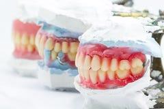 Modèles dentaires montrant différents types Image stock