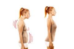 Młoda kobieta z pozycja defektem i ideału pelengiem Zdjęcie Stock