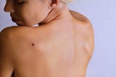 Młodej kobiety lookimg przy birthmark na ona z powrotem, skóra Sprawdzać korzystne gramocząsteczki Zdjęcia Royalty Free