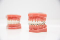 Model of human jaw with wire braces. Attached. Dental and orthodontic office presentation tool, isolated on white background Stock Image