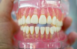 Model of human teeth of the human jaw. Close-up stock photo