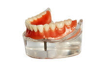 Model of a jaw and denture 1. Lower jaw model and  denture on implants isolated on  white background Stock Photos