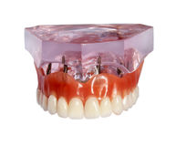 Model of a jaw and denture 3 Royalty Free Stock Photos